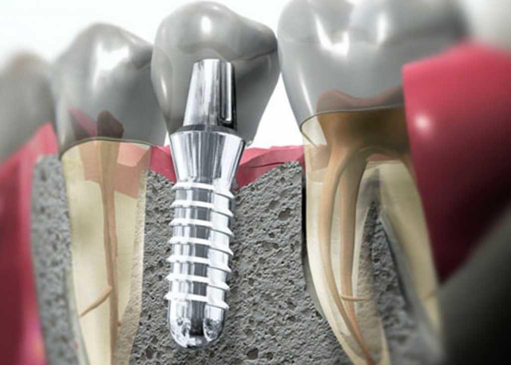 Надежным решением для замены зубов является имплантация
